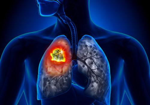 Bronchialkarzinom-Lungenkrebs 2