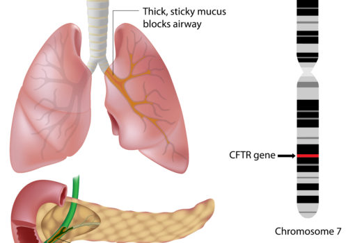 Muskoviscidose