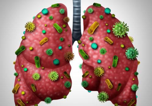 Pneumonie, Lungenentzündung
